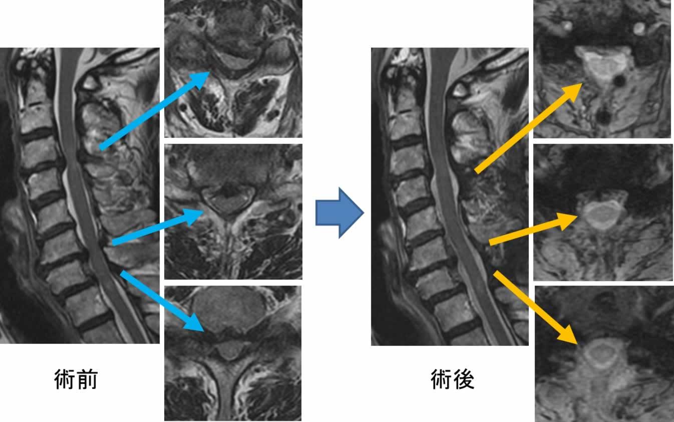 症 神経 根 性 費用 症 頚椎 手術